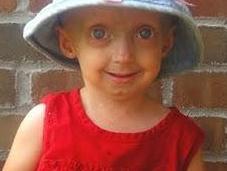 Rarología: Progeria
