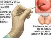 Destacan importancia detección temprana prevención cáncer cervical