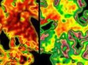 bilingüe protege cerebro demencia