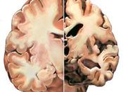 proteínas desencadenan degeneración cerebro