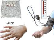 Preeclampsia-Eclampsia.