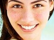 Remedios caseros para manchas piel