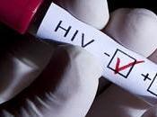 diferentes vías infección sida