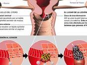 síntomas cáncer endometrial, Tratamiento Factores riesgo uterino