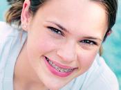 ¿Qué tenemos saber sobre ortodoncias?