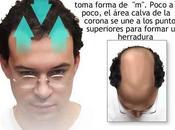 Hierbas para crecimiento cabello Remedios herbarios pérdida pelo