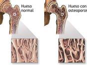 deterioro huesos tras menopausia