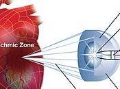 Novedoso tratamiento invasivo para isquemia cardíaca