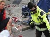 heridos bombas Boston, mutilados