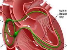 Prevenir arritmias cardiacas equilibrada alimentación