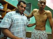 disidente cubano guillermo fariñas abandona huelga hambre