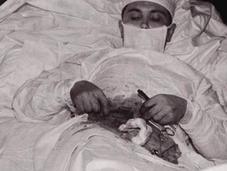 cirujano operó mismo...