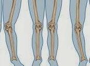 Piernas Arqueadas Tratamiento médico medicinas alternativas