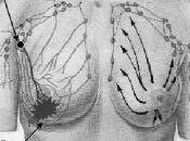 ¿Qué Biopsia Selectiva Ganglio Centinela?