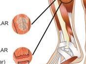 rotura fibrilar pádel