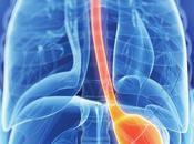 radioterapia cáncer gástrico