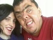 Juan José Prieto, afectado síndrome Apert: Policía interrogó aspecto físico»