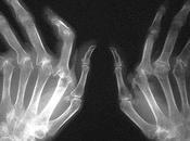 Artritis reumatoide. Síntomas cómo prevenirla.