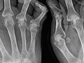 dedos dolores