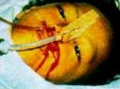 Reemergencia virus Ébola