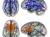 Descubren notables diferencias conectividad cerebral entre hombres mujeres
