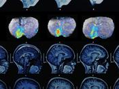 Nuevo sensor permite mapear actividad neuronal precisión molecular