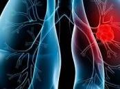 Primera vacuna terapéutica contra cáncer pulmón Racotumomab, Vacuna Argentino-Cubana