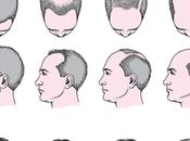 Tipos alopecia