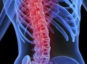 nuevo tratamiento contra dolor óseo muscular resulta efectivo hasta fecha
