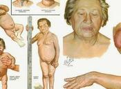 Todo tienes saber hipotiroidismo