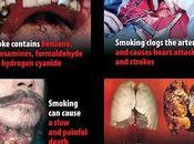 Causas, síntomas, tratamiento pronóstico etapa cáncer pulmón