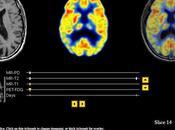 Imágenes cerebro real vivo