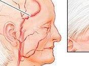 Arteritis Células Grandes Polimialgia reumática: posible causa dolor cabeza hombros