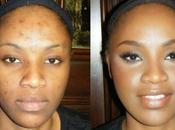 Como cubrir manchas acne maquillaje