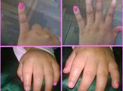 #PinkiePink 2014!