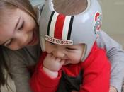 Fantásticos cascos para corregir plagiocefalia decorados especialmente bebés