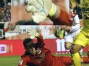 Glove Spotting Nº20