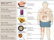 Obesidad infantil, riesgos