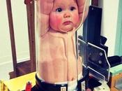 Pigg-O-Stat, dispositivo inmovilización pediátrica para hacer radiografías bebés