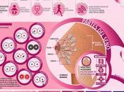Cáncer mama#enfermedad#cáncer#infografía