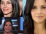 Courtney antes después, consecuencias Botox evidentes.
