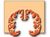 enfermedad Alzheimer contagiosa