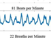 Monitorización pulsaciones cardiacas mediante smartphone incluso lleva bolso)
