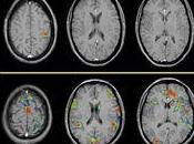 Nuevas técnicas demuestran dolor pacientes Fibromialgia real
