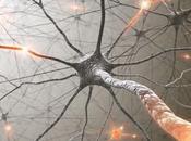Sensación choques largo cuerpo problemas ojos puede signo esclerosis múltiple
