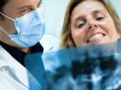 necesitas implante dental vives provincia Málaga, interesa este artículo