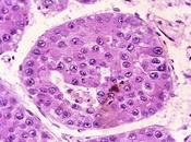 Generan Celulas Sanas partir Enfermas