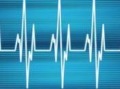 Palpitaciones corazón: Causas, riesgos tratamiento