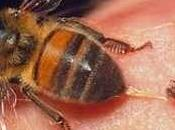Picotazos abejas para sanar stings heal.
