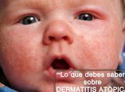 debes saber para controlar dermatitis atópica hijo